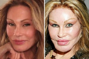 jocelyn-wildenstein-630x420