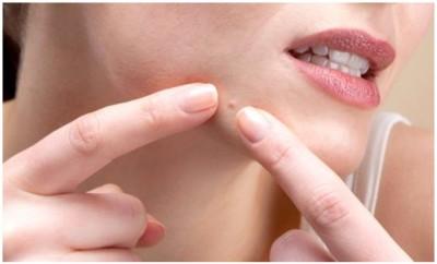 makeup za prekrivanje akni