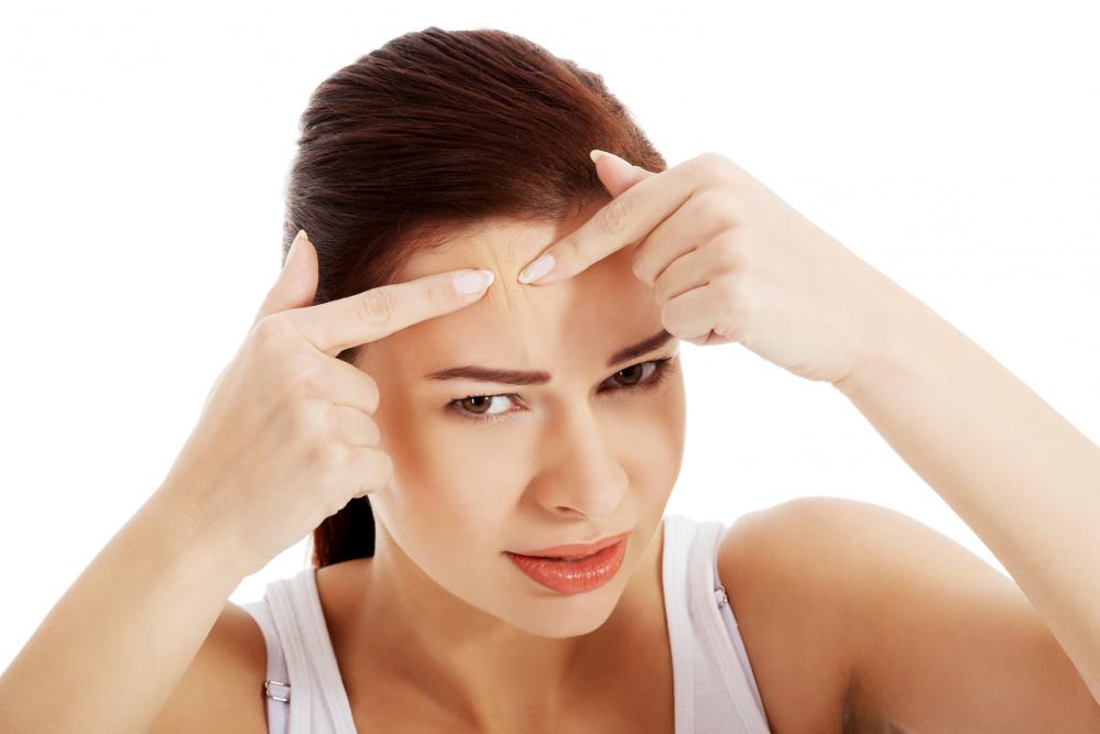 masna i problematična koža lica