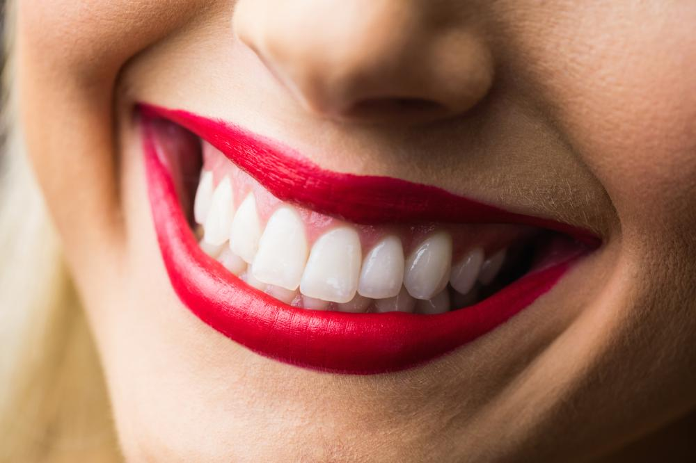 karmini za belje zube
