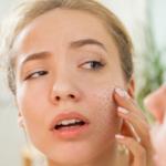 suva koža lica