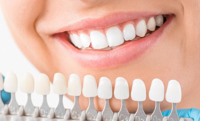 kućno izbeljivanje zuba