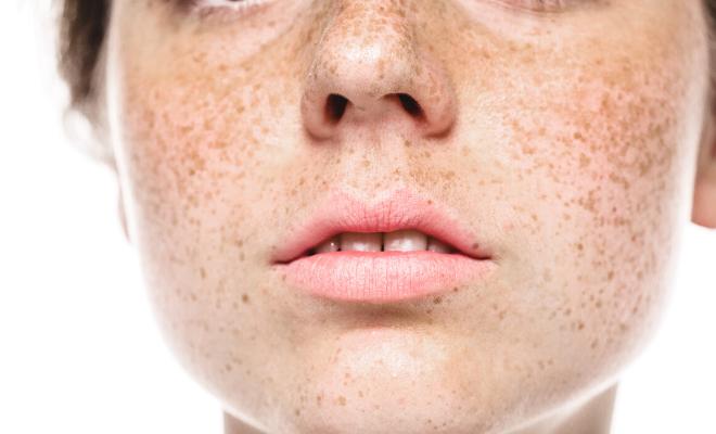 hiperpigmentacije i pegice