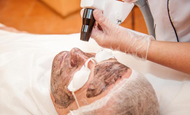 laserski tretman lica