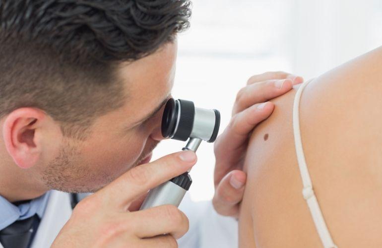 pregled dermatologa