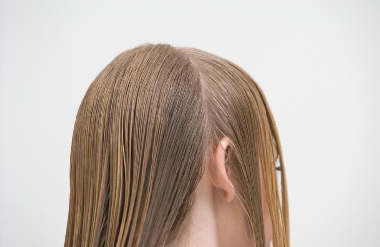 prljava kosa