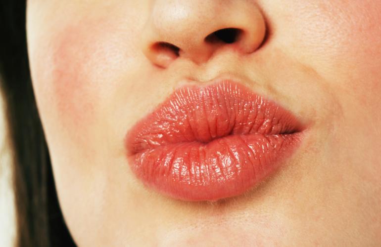 hipergpigmentacija iznad usana
